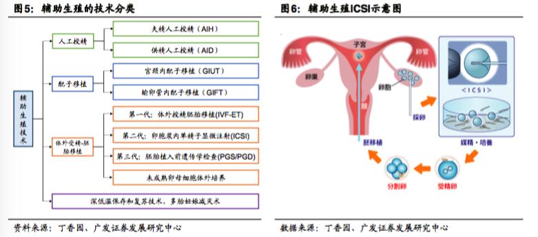 辅助生殖技术分类和ICSI单精子注射的流程操作